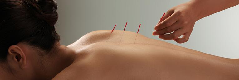 Acupuncture Needles SEIRIN
