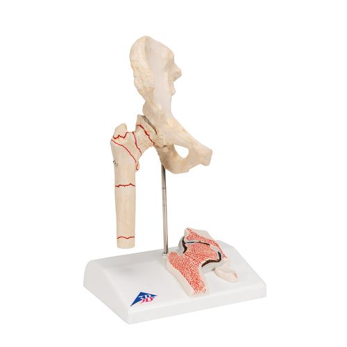 Human Femoral Fracture & Hip Osteoarthritis Model - 3B Smart Anatomy, 1000175 [A88], Joint Models