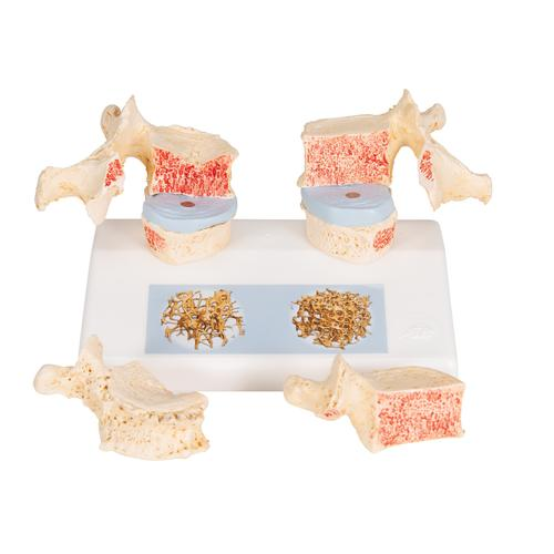 Osteoporosis Didactic Model - 3B Smart Anatomy, 1000182 [A95], Human Spine Models