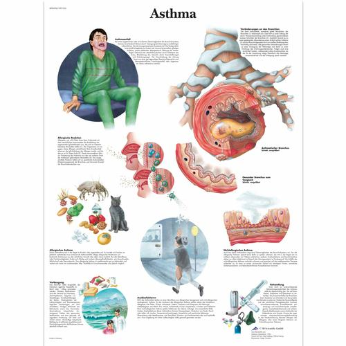 Asthma Chart, 1001354 [VR0328L], Asthma and Allergies Education