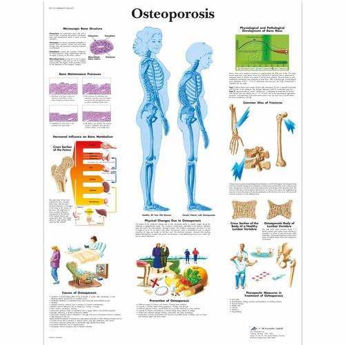 VR1121UU: Osteoporosis Chart