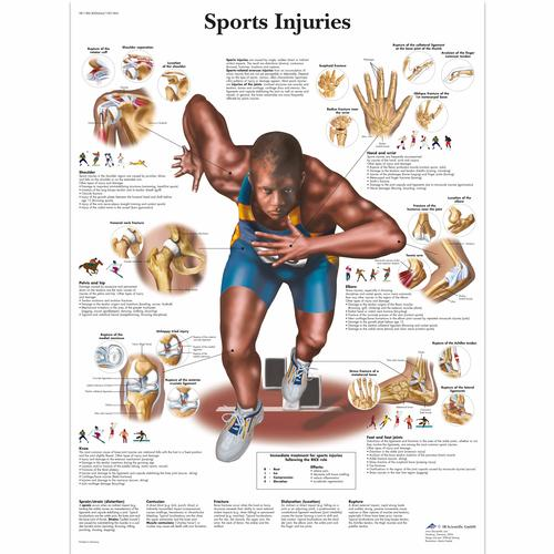 Sports Injuries Chart, 4006664 [VR1188UU], Muscle