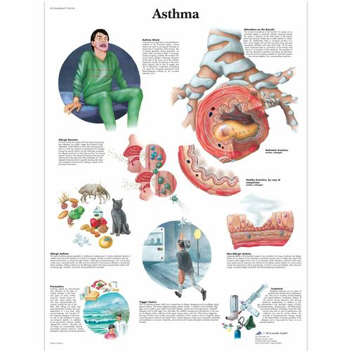 Asthma Chart, 4006677 [VR1328UU], Asthma and Allergies Education