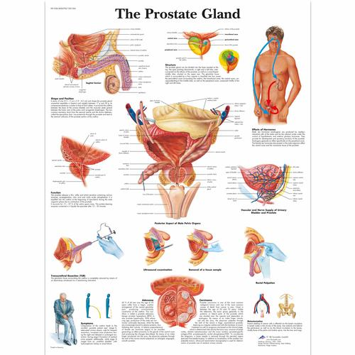 The Prostate Gland chart, 4006700 [VR1528UU], Men's Health Education
