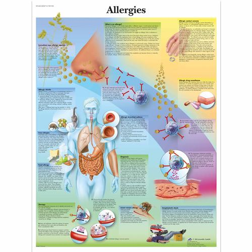Allergies Chart, 4006715 [VR1660UU], Asthma and Allergies Education