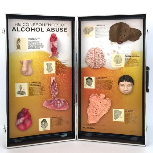 Consequences of Alcoholism, 3D Info Board, 1005582 [W43053], Drug and Alcohol Education