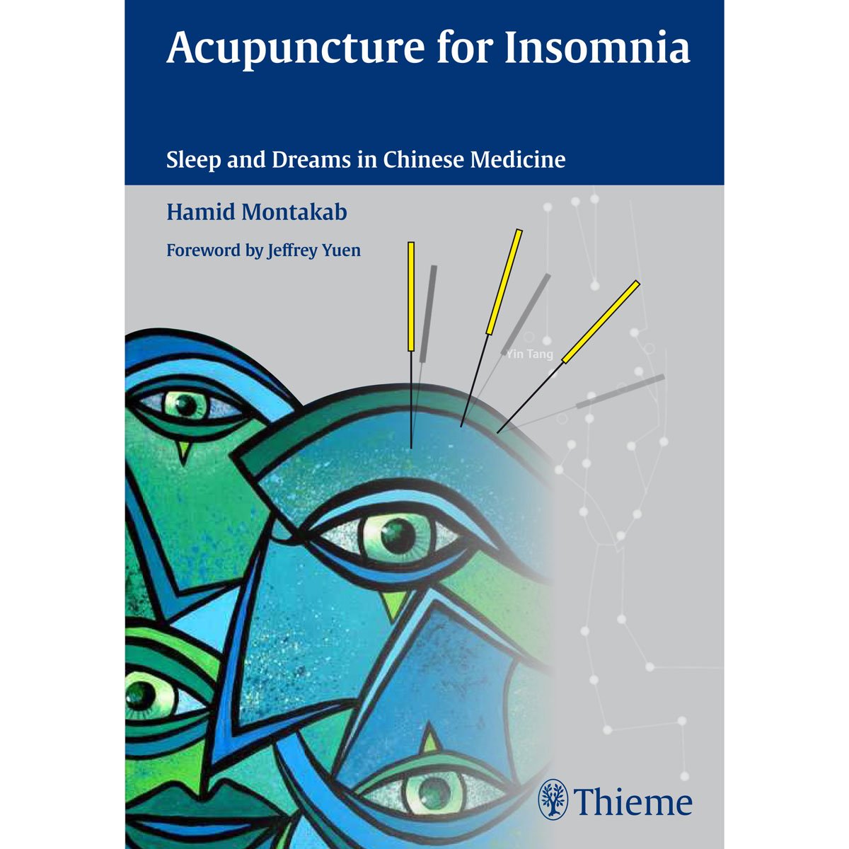Acupuncture for Insomnia - Montakab - 1017223 ...