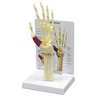 Hand/Wrist Carpal Tunnel Syndrome Model, 1019519, Arm and Hand Skeleton Models
