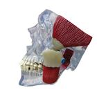 TMJ Model, 1019541, Dental Models
