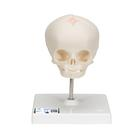Foetal Skull Model, natural cast, 30th week of pregnancy, on stand,A26
