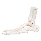 Loose Foot and Ankle Skeleton, left,A31/1L