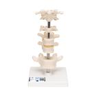 Model of 6 Human Vertebrae, Mounted on Stand (atlas, axis, cervical, 2x thoracic, lumbar)  - 3B Smart Anatomy, 1000147 [A75], Vertebra Models