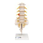 Lumbar Spinal Column with Dorso-Lateral Prolapsed Intervertebral Disc,A76/5