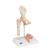 Human Femoral Fracture & Hip Osteoarthritis Model - 3B Smart Anatomy, 1000175 [A88], Joint Models (Small)