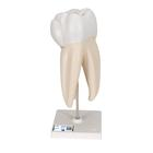 Upper Triple-Root Molar, 3 part,D10/5