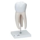 Giant Molar with Dental Cavities, 15 times life size, 6 part, 1013215 [D15], Dental Models