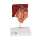 Gallstone Model - 3B Smart Anatomy, 1000314 [K26], Digestive System Models