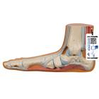 Flat Foot (Pes Planus) Model - 3B Smart Anatomy, 1000355 [M31], Joint Models