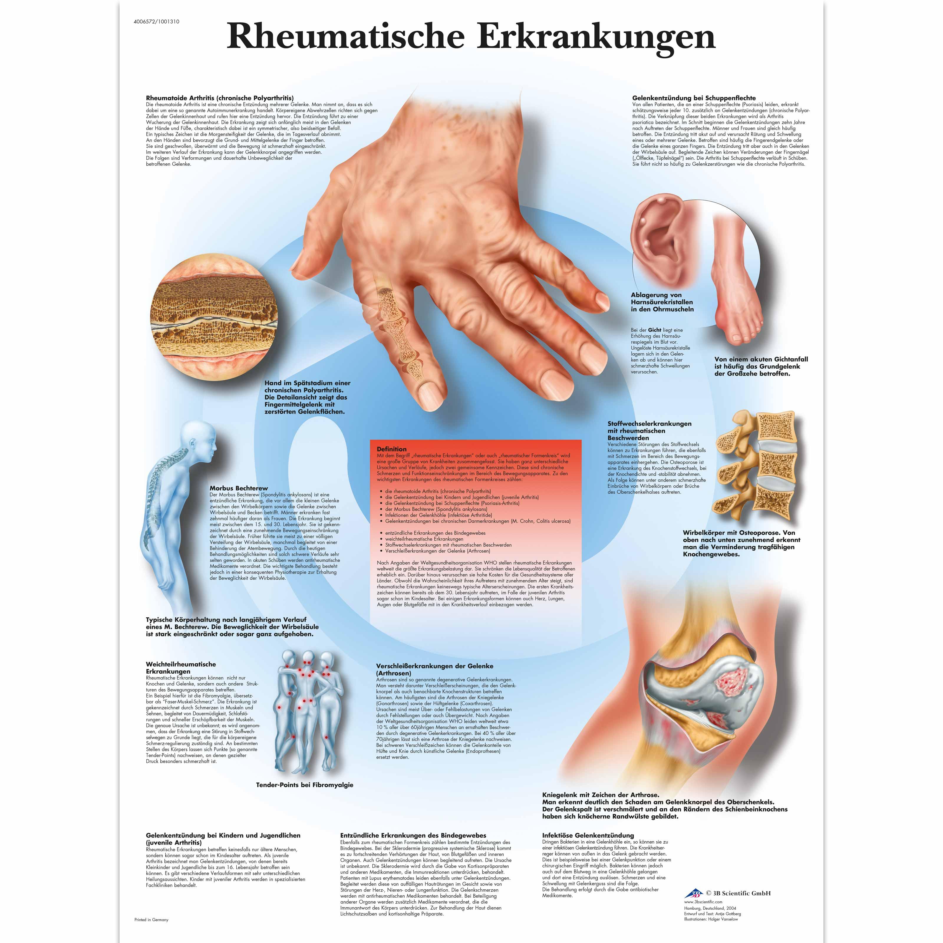 Entzündliche Gelenk- und Wirbelsäulenerkrankungen
