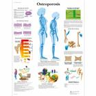 Osteoporosis Chart, 4006653 [VR1121UU], Arthritis and Osteoporosis Education