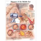 Diseases of the Middle Ear Chart,VR1252L