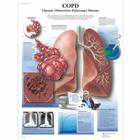 COPD Chart - Chronic Obstructive Pulmonary Disease,VR1329L