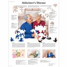 Alzheimer's Disease Chart, 4006713 [VR1628UU], Brain and Nervous system