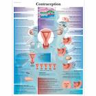 Contraception, 1001747 [VR2591L], Pregnancy and Childbirth
