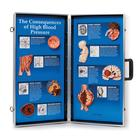 Consequences of High Blood Pressure 3D Display, 1018277 [W43081], Heart Health and Fitness Education