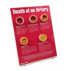 Death of An Artery Easel Display, 1018290 [W43121], Heart Health and Fitness Education