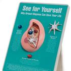 W43136: Why Breast Biopsies Can Save Your Life Easel Display