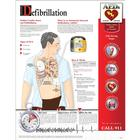 W59500: Defibrillation Chart - Laminated